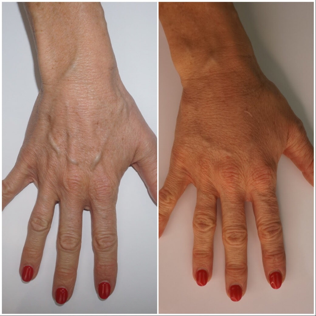 Dermal hand treatment before and after