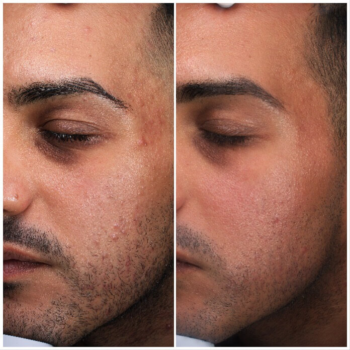 face skin clear before and after