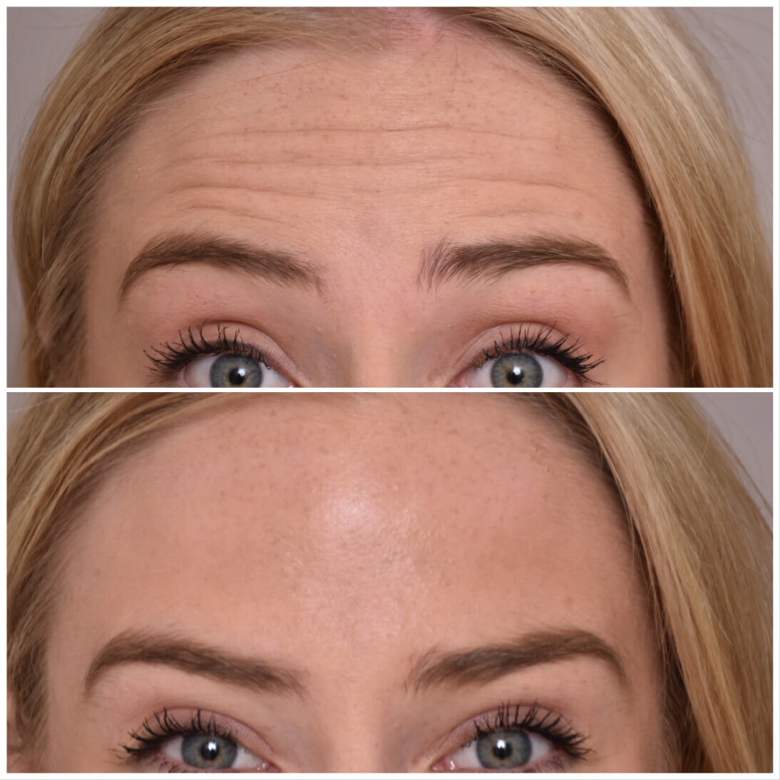 Anti Wrinkle treatment Before and after images