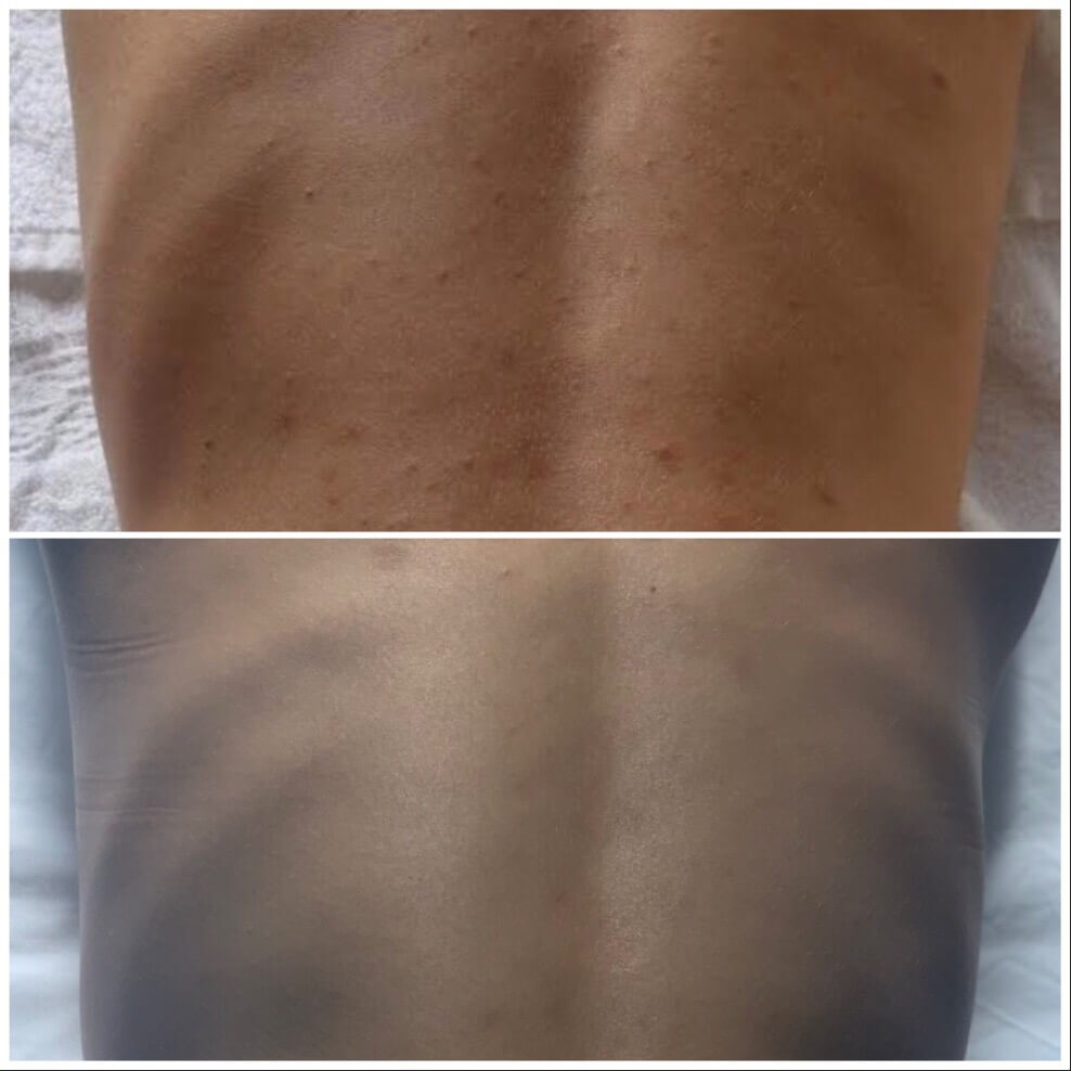 treatment of back skin clear before and after