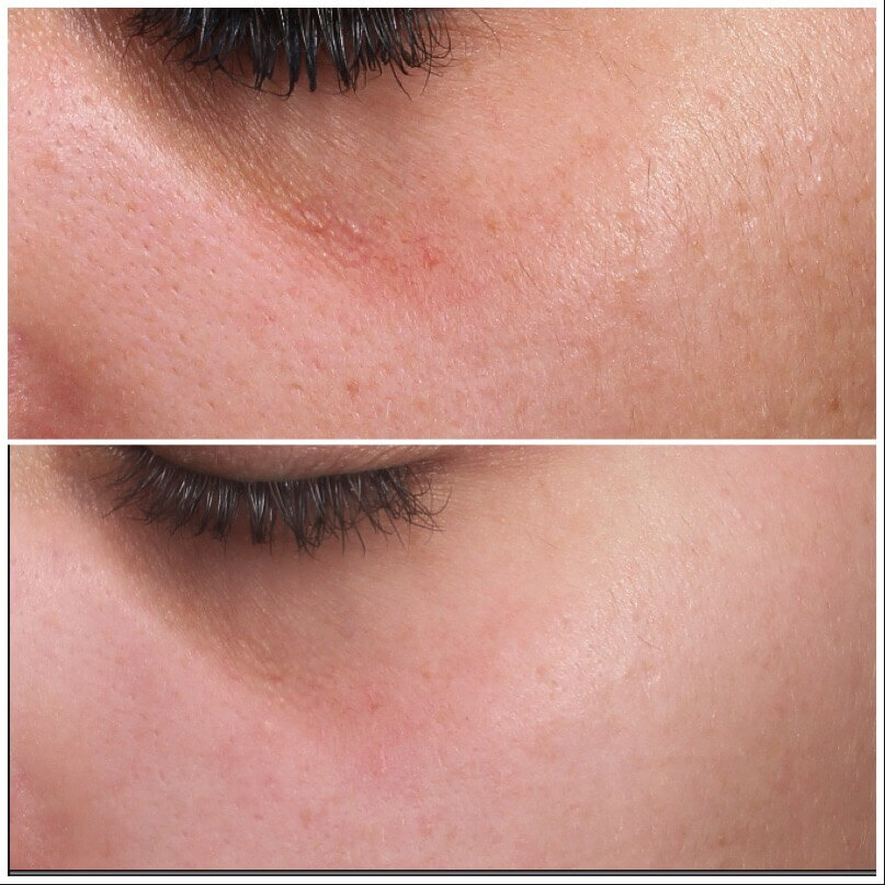 PRP Treatment for face before and after
