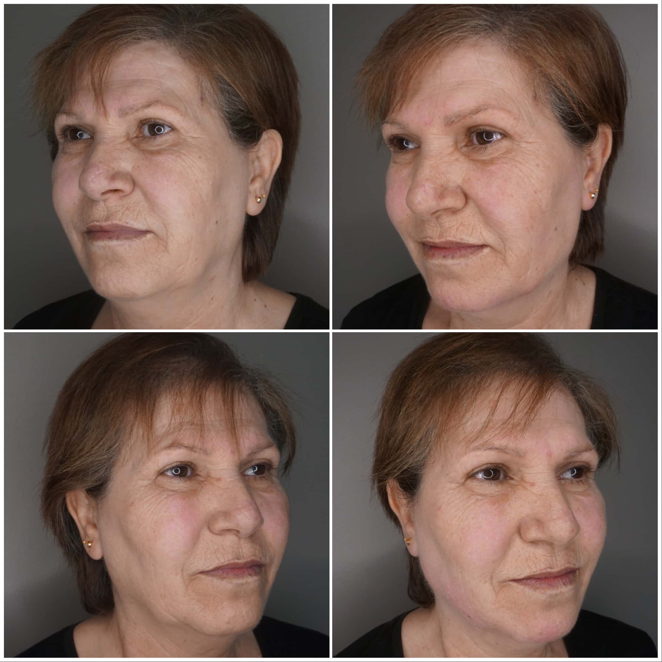 Dermal face treatment before and after