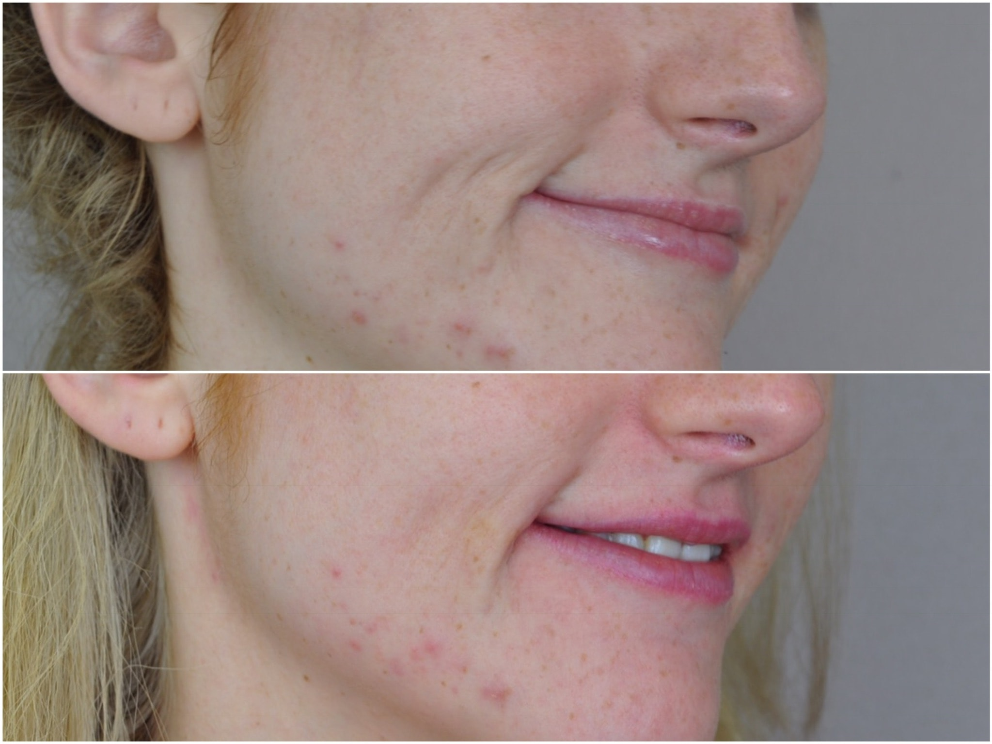 Dermal Lip treatment before and after