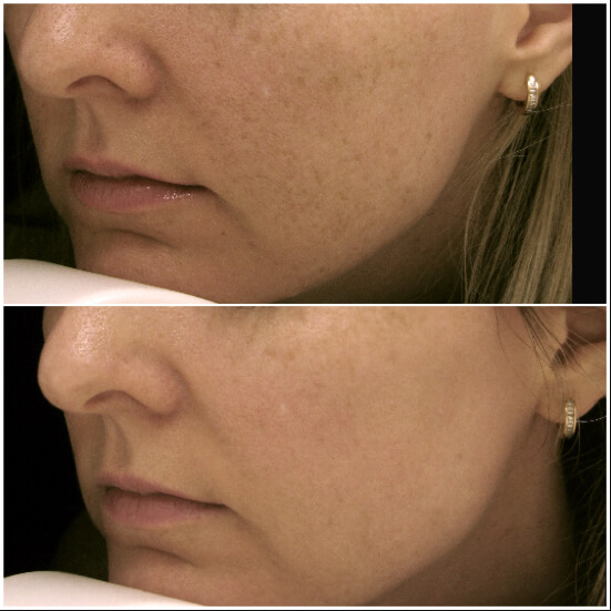Q-Switch treatment in face before and after