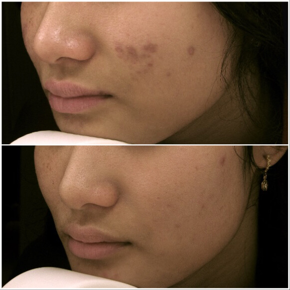 treatment for chemical peels