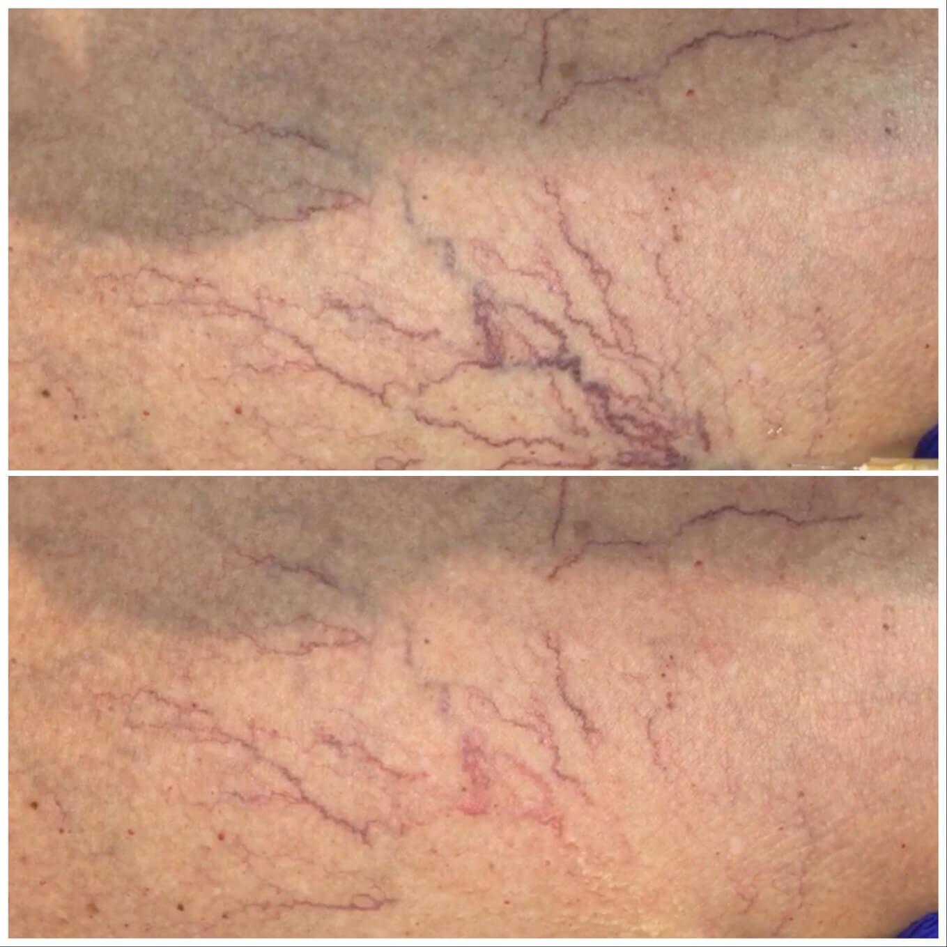 Leg veins result picture