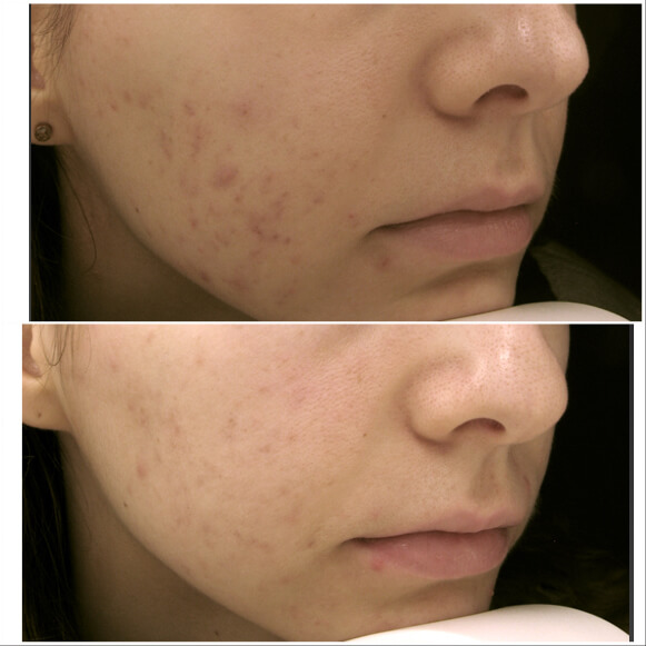 Treatment with skin needling before and after