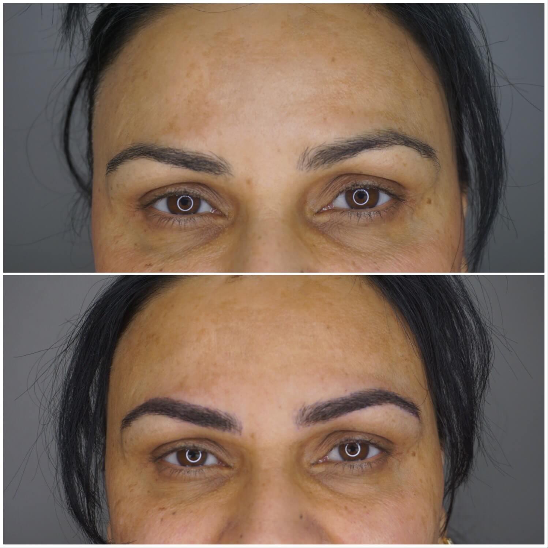 eye cosmetic eyebrow treatment