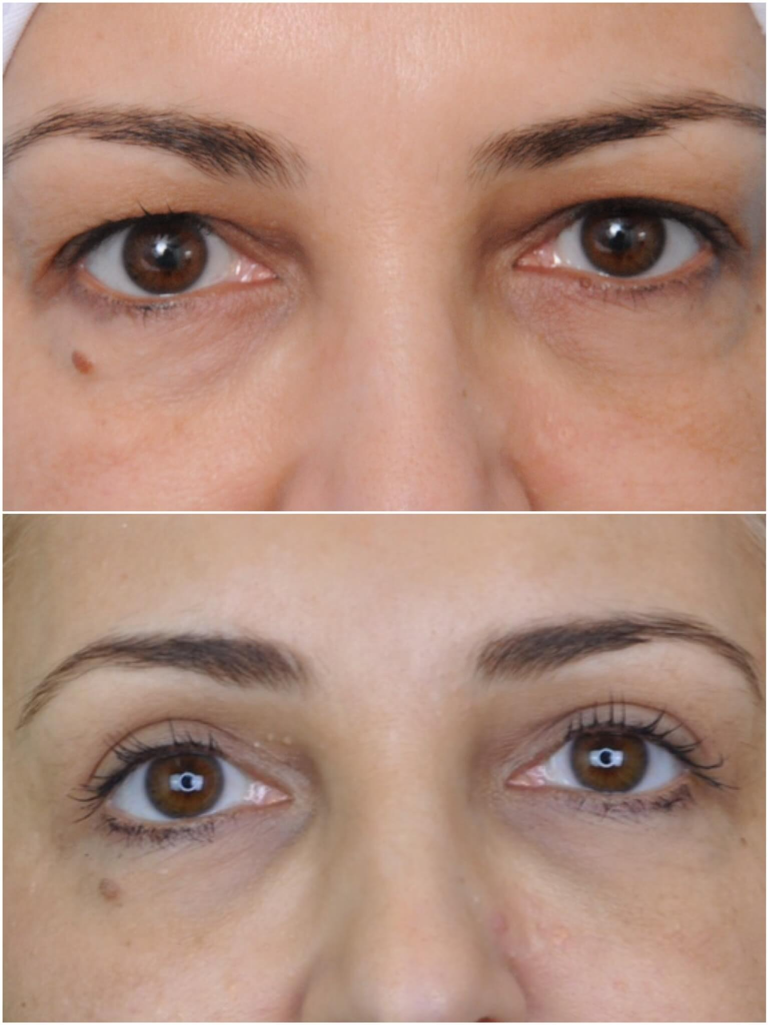 eye blepharoplasty treatment