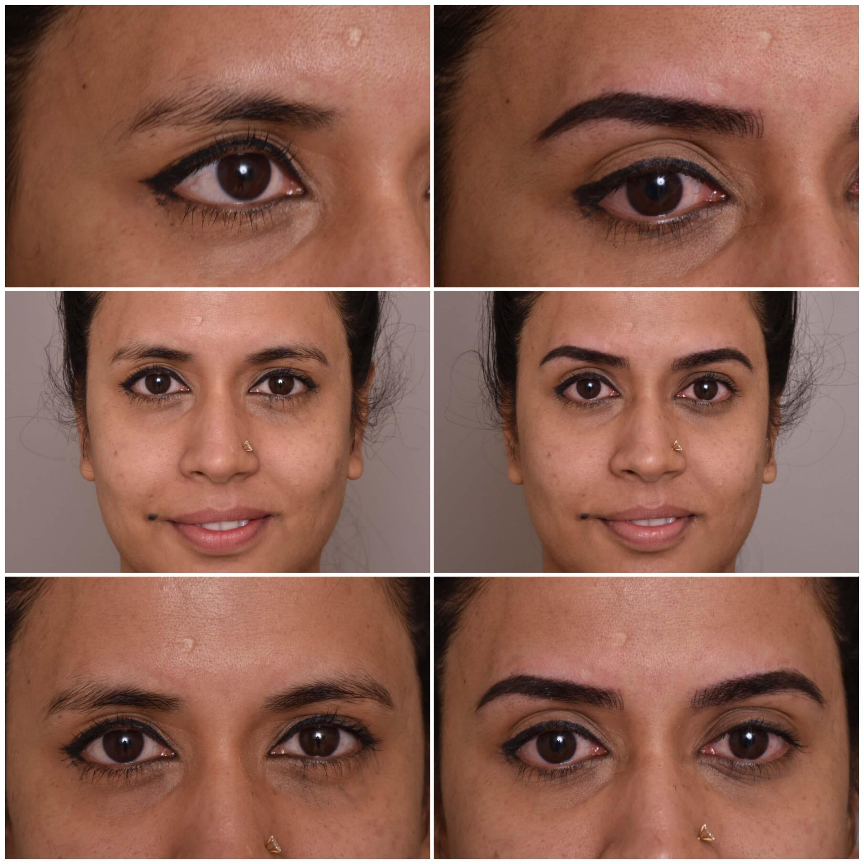 eye cosmetic treatment
