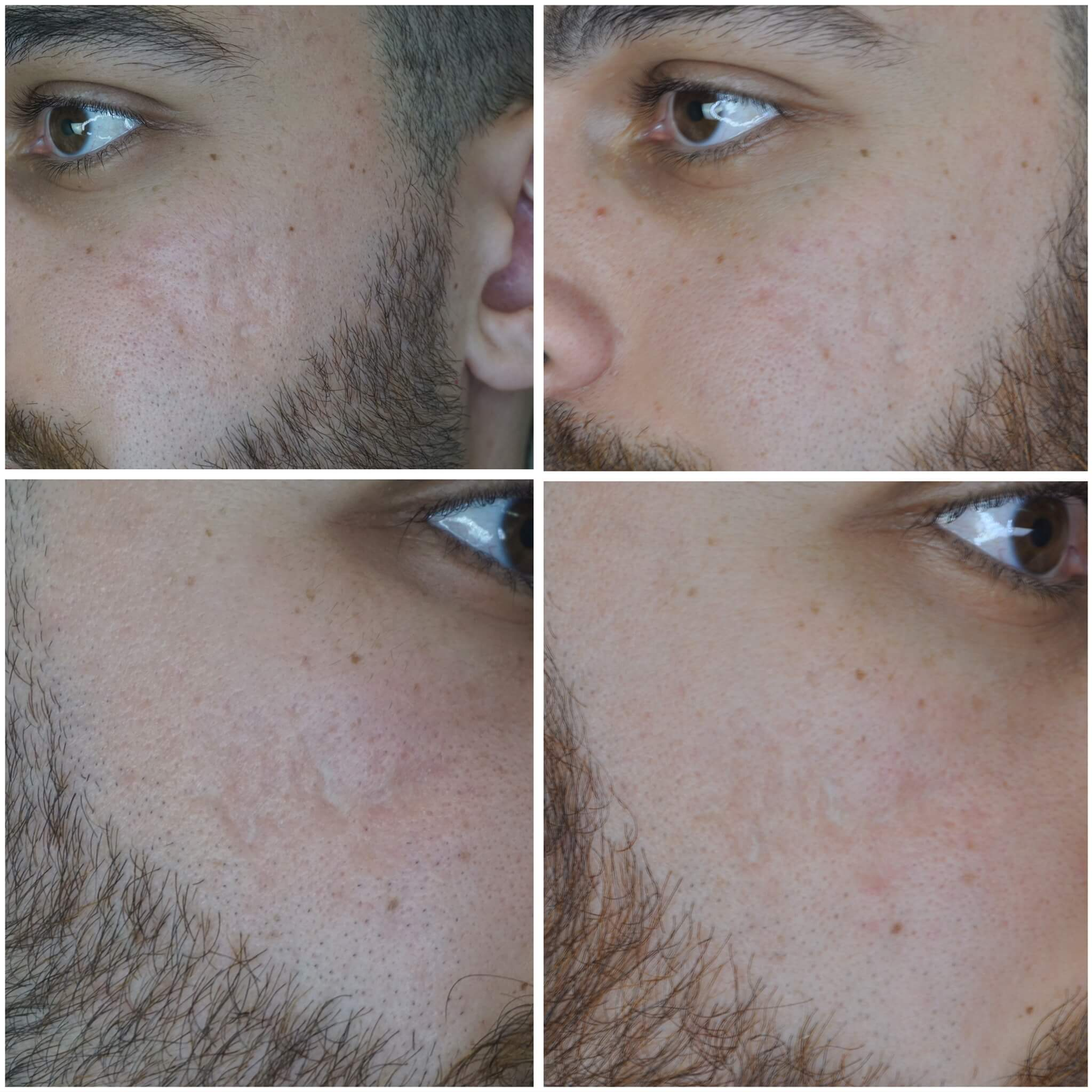 Treatment for beard of men before and after