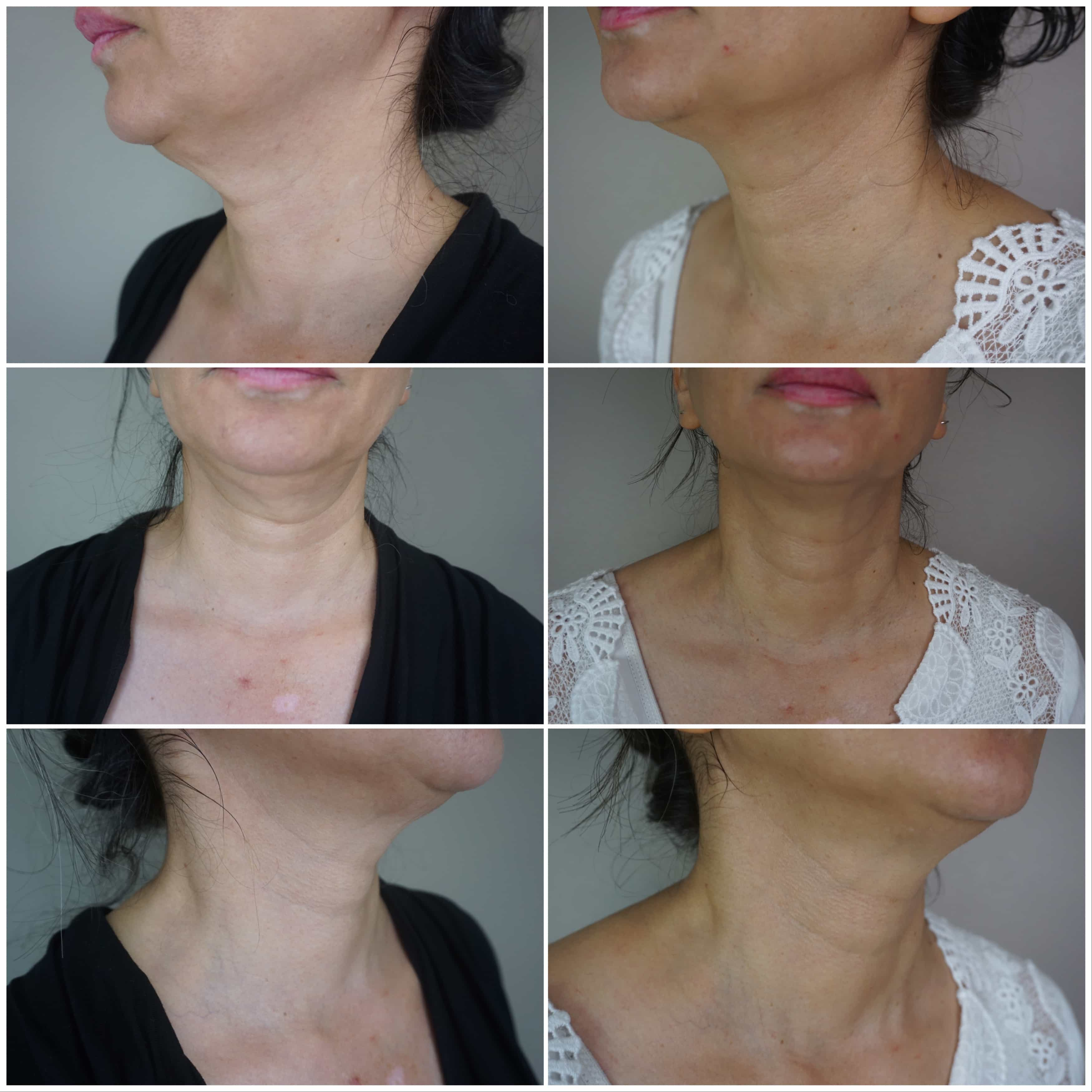 neck skin tightening